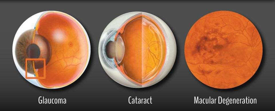 Glaucoma | Cataract | Macular Degeneration